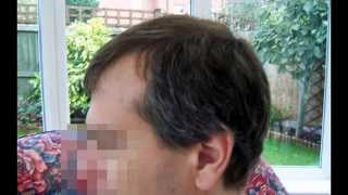 FUE Patient Results 08.26.2014