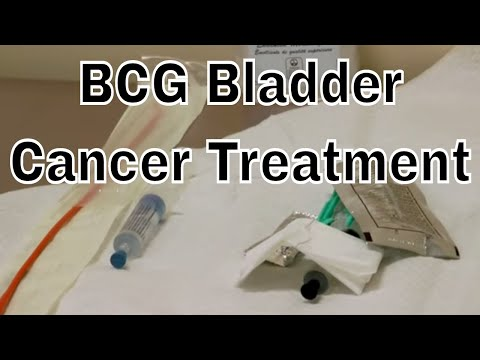 BCG Treatment for early Bladder Cancer (chemo)