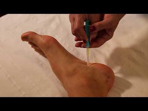 tratament cu articulațiile călcâiului