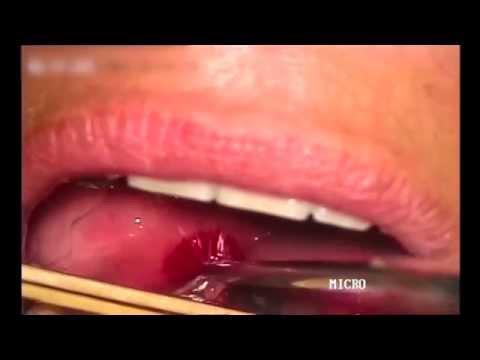 Drenaje de un absceso periamigdalino / Peritonsillar abscess drainage