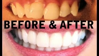 My TEETH (Before & After) Invisalign, Zoom Teeth Whitening, Veneers