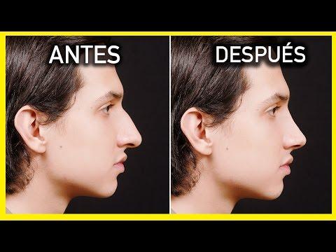 Cirug a de nariz antes y despu s rinoplastia antes y - Banos reformados antes y despues ...