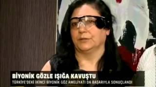 Türkiye'de İkinci Biyonik Göz Ameliyatı Gerçekleşti