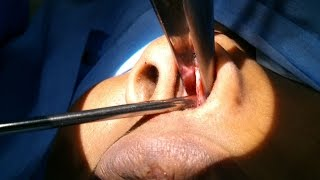 SEPTOPLASTY FOR SNORING - Dr Paulose FRCS (ENT)