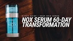 NOX Serum 60-Day Transformation