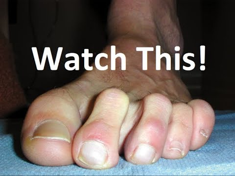 bunion-&-hammer-toe-surgery-recovery-tips-in-2-minutes!
