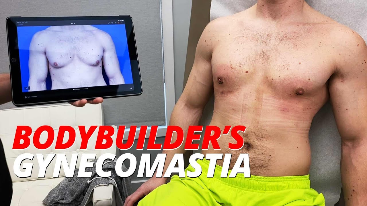 Bodybuilders Gynecomastia - Show Your Chest, Not Your Gyno