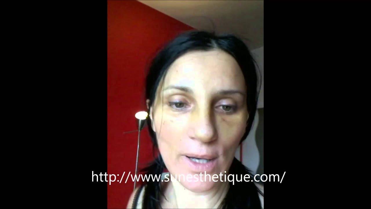 Préférence Lifting du visage vertical + rhinoplastie + liposuccion : 7 jours  EP56