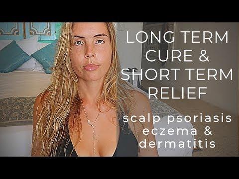 Hair Loss & Scalp Psoriasis / Seborrheic Dermatitis / Eczema