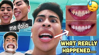 spilling-the-chisme-on-my-teeth-louie-s-life