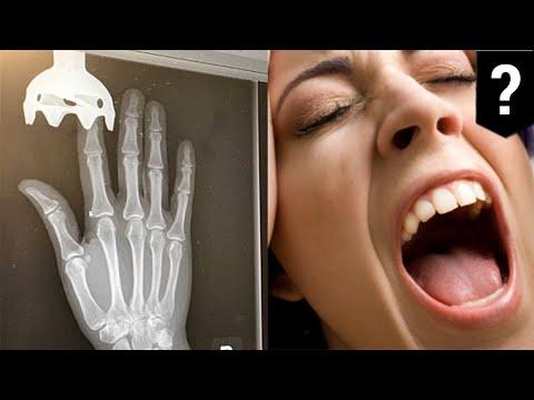 Immersion blender accident: Woman gets finger stuck in blender trying to make falafel - TomoNews