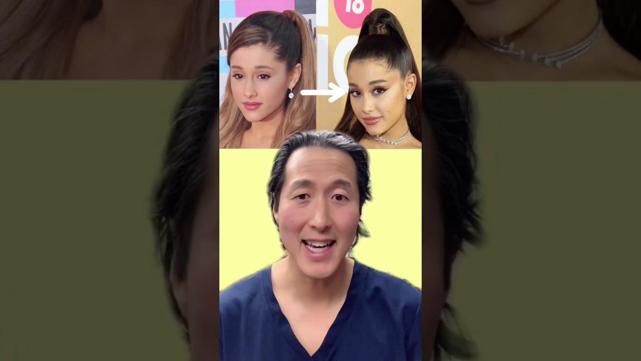 Did Ariana Grande Have Plastic Surgery?