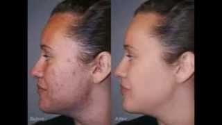 antibiotica voor acne