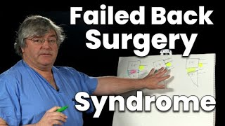 Failed Back Surgery Syndrome (and What to Do About It)