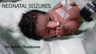 Neonatal Seizures | Pediatrics