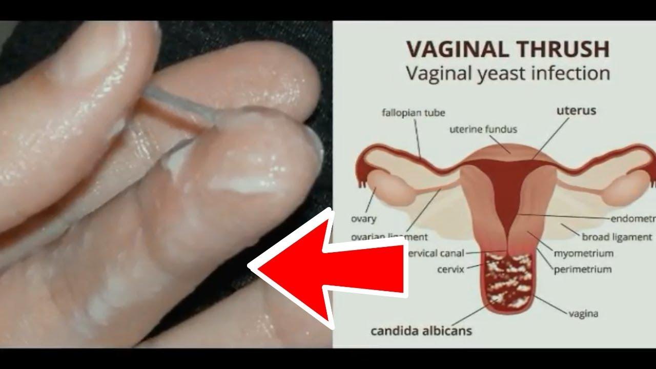 of vagina thrush Pictures