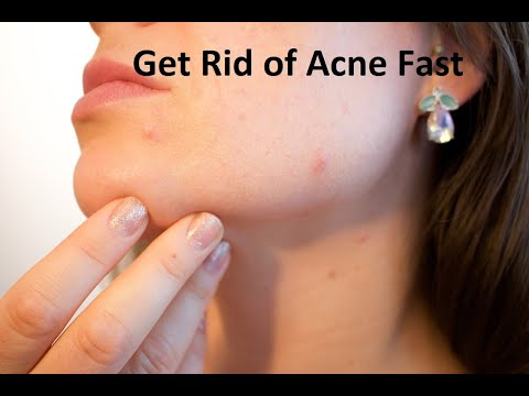 how-to-remove-acne-scars-fast-naturally