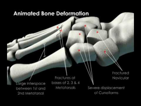 Skeletal Fracture of Foot Bones