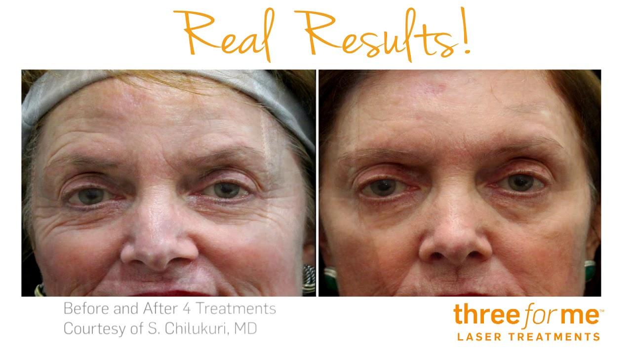 Electrik Image Spa - Sun Spot Removal - Three Form Me Laser Skin Resurfacing