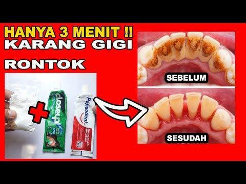 cara-menghilangkan-karang-gigi-secara-alami-dan-cepat-dalam-waktu-3-menit-tanpa-perlu-ke-dokter-gigi