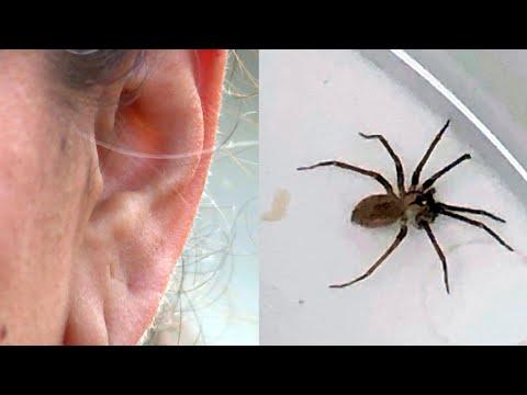 AJ - GROSS: Brown Recluse Spider In Woman's EAR