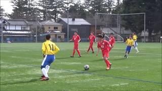 27th AFC杯 予選決勝 vs ヴァルゼア千葉