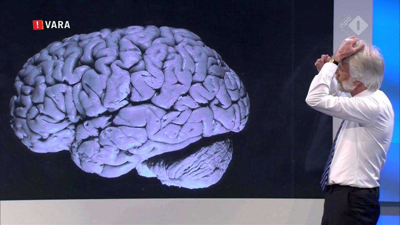 scherder hersenen