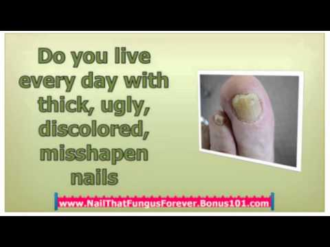foot fungus cure – get rid of nail fungus – foot fungus treatment