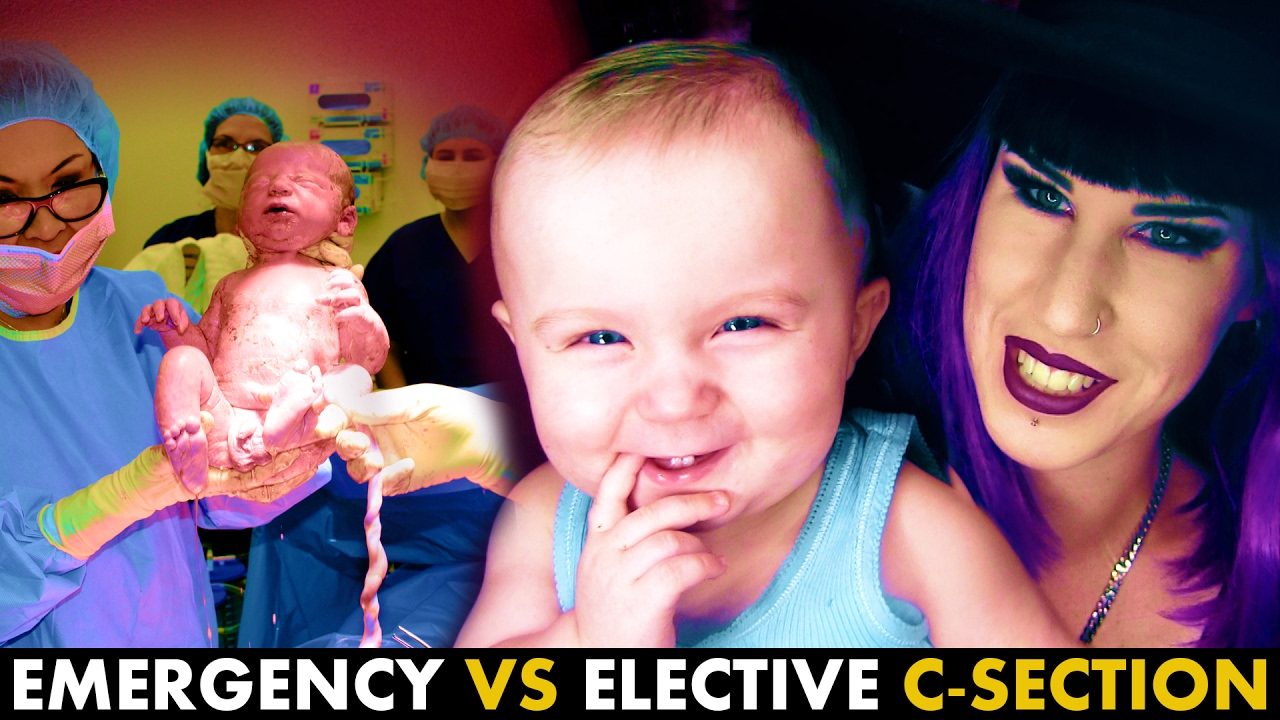 LIVE C-section footage + comparing Emergency Vs Elective ...