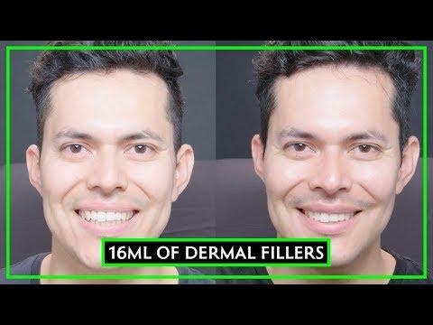 16 Syringes Of Dermal Filler Male Make-Over