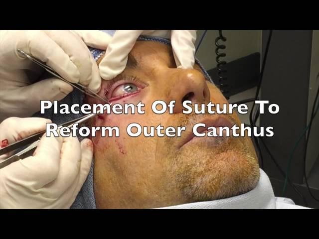 Cosmetic Lower Eyelid External Blepharoplasty Colorado Springs