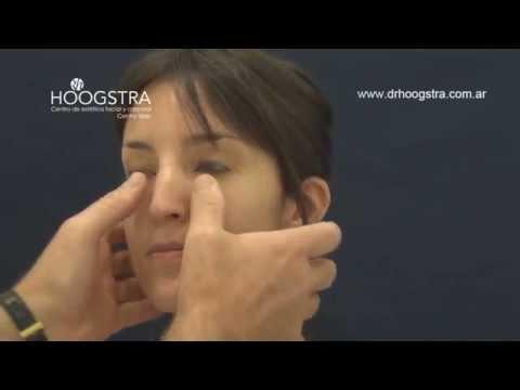 Rinoplastía - Cirugía Estética de Nariz (14020)