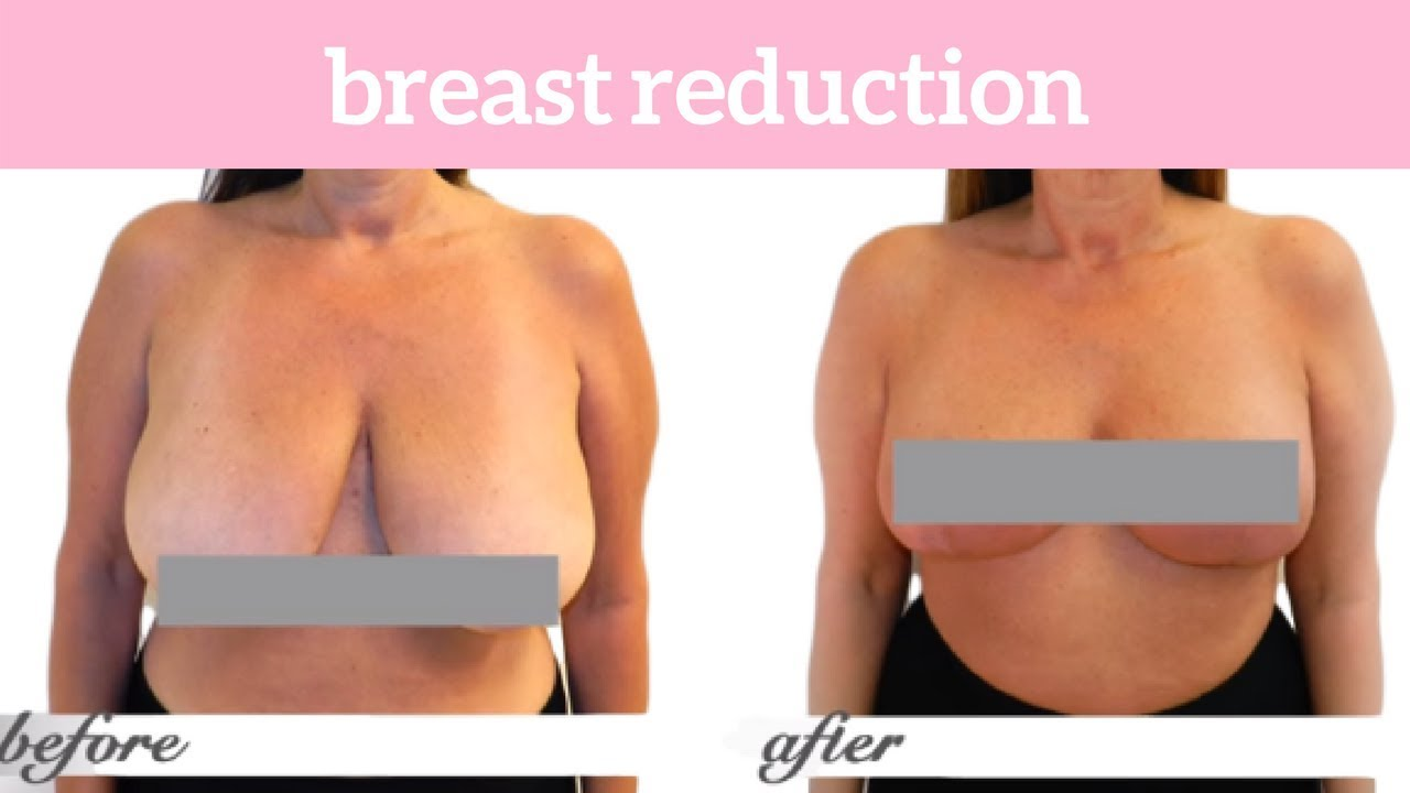 include augmentation Does reduction breast breast