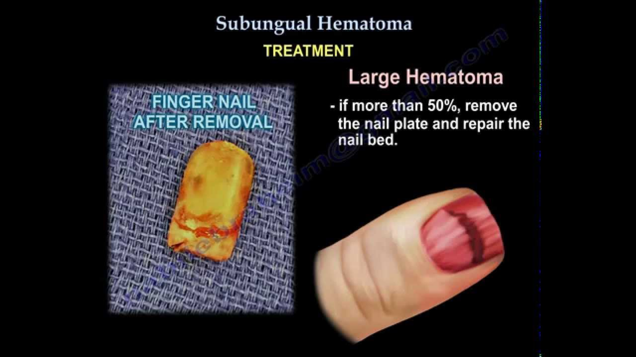 Subungual Hematoma - Everything You Need To Know - Dr  Nabil Ebraheim
