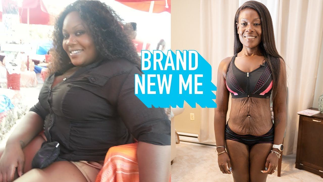 I Lost 180lbs After A Near-Fatal Car Crash | BRAND NEW ME