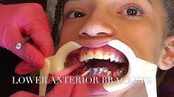 Orthodontic Technician/ Dental assistant Vlog