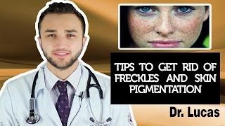 Tips to get rid of freckles and skin pigmentation - Dr Lucas Fustinoni Brazil