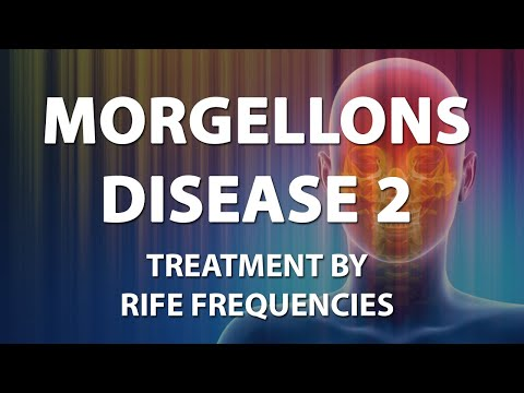 Morgellons Disease 2 - RIFE Frequencies Treatment - Energy & Quantum Medicine with Bioresonance
