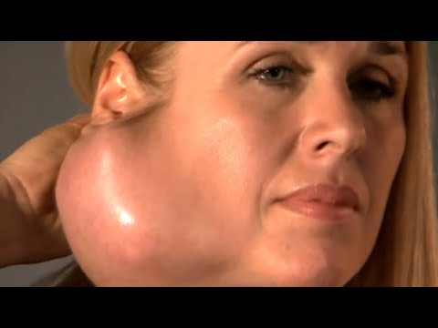 Parotidectomy (UPDATE) for Large Facial Tumor Removal, Parotid Gland The Doctors TV Show