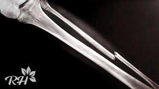 Pengobatan Urut Patah Tulang H. Sanusi Tangerang.