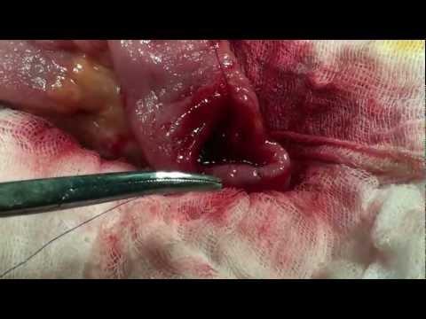 Khâu nối ruột tận-tận ( End-to-end intestinal anastomosis)