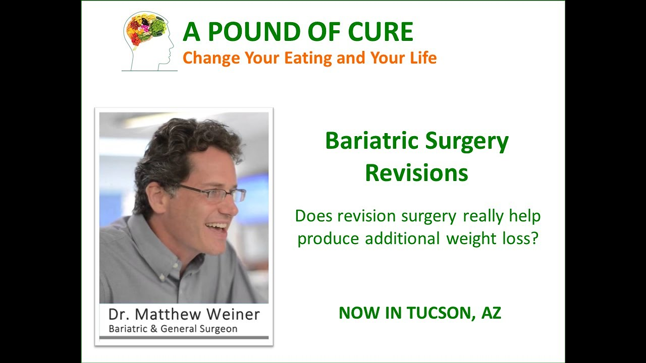 Bariatric Surgery Revisions Will They Help Or Not Youtube