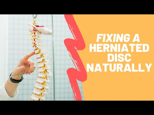 Fixing a Herniated Disc Through Spinal Decompression