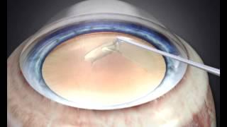 Катаракта. Операция и реабилитация(Видео посвящено порядку проведения операции по замене хрусталика при катаракте и правилам предосторожнос..., 2015-02-03T09:31:12.000Z)