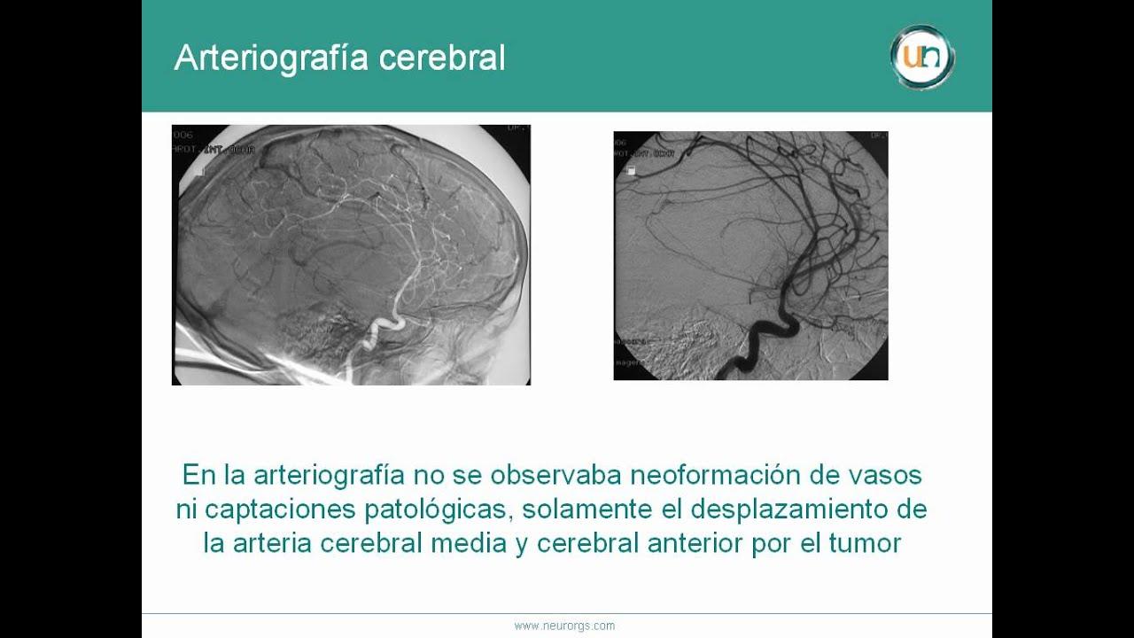 Dolor de cabeza por encima del tumor cerebral del ojo izquierdo