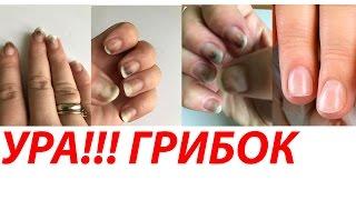 ДОВЕДЕНО! ВІД ГРИБКА МОЖНА ПОЗБУТИСЯ ЗА 1 ДЕНЬ!!) Автор Олена Дзик