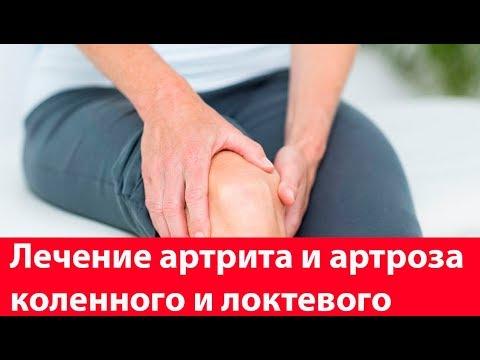 Лечение артрита и артроза коленного и локтевого в домашних условиях. Суставы