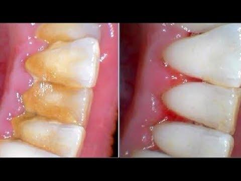 Как убрать камень с зубов