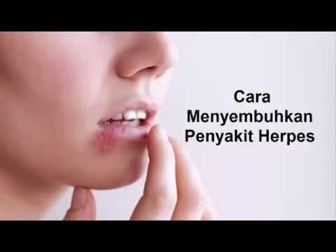 Cara Menyembuhkan Penyakit Herpes - YouTube