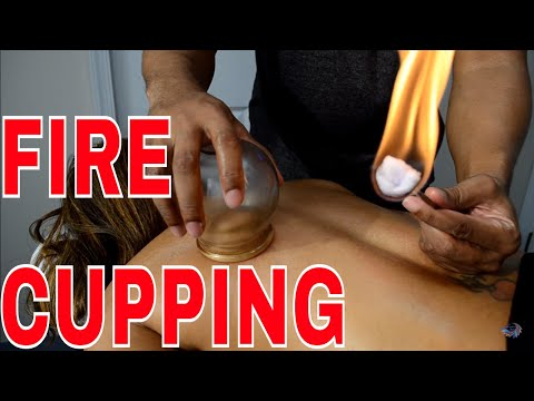 how-to-do-fire-cupping-&-deep-tissue-massage-using-a-tens-unit-for-muscle-recovery-for-athletes
